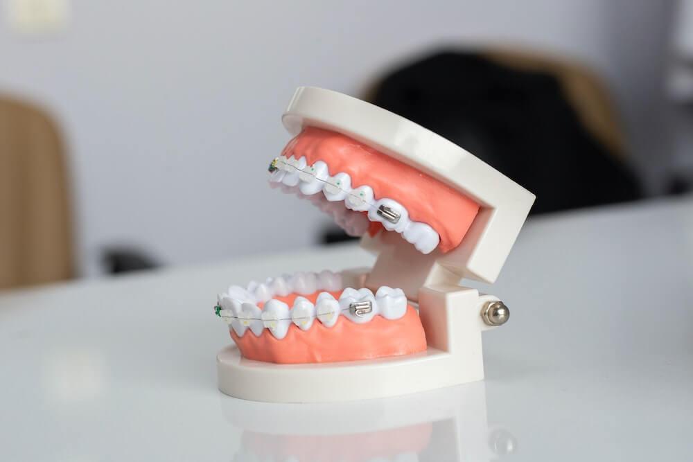 Co to znaczy ortodonta